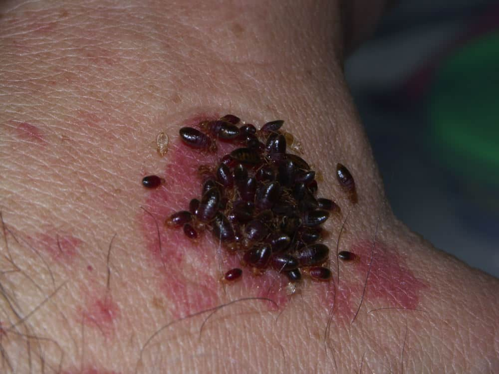 Exceptionnel How Long Do Bed Bug Bites Last