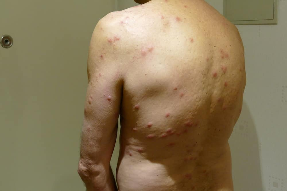 Bed Bug Rash Symptoms Treatment Pestseek
