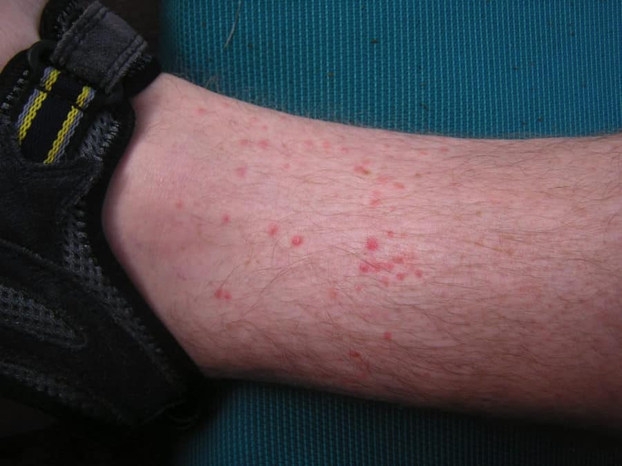 Flea Bites On Ankle