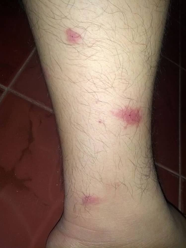Mosquito bites on ankle