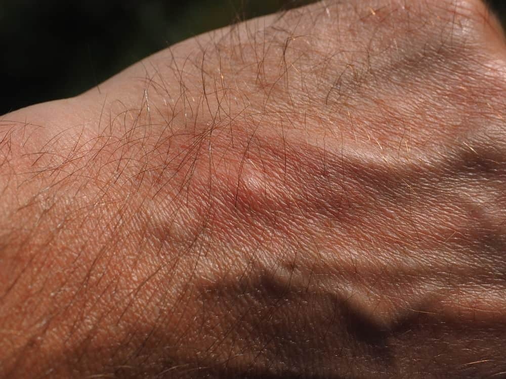 mosquito bite on hand