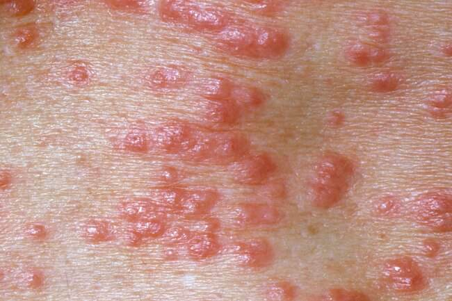 Scabies Vs Bed Bugs: What Are The Differences?